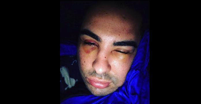 Doc Samad quitte le Maroc après une agression