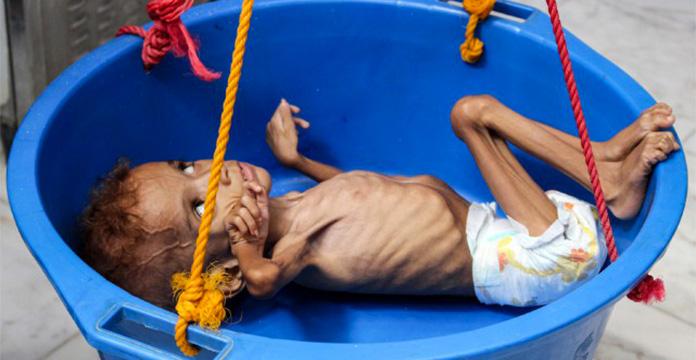 La famine a peut-être tué 85.000 enfants au Yémen - ONG